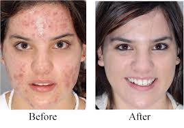 Stopping Acne