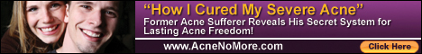 Acne No More Help Is Here